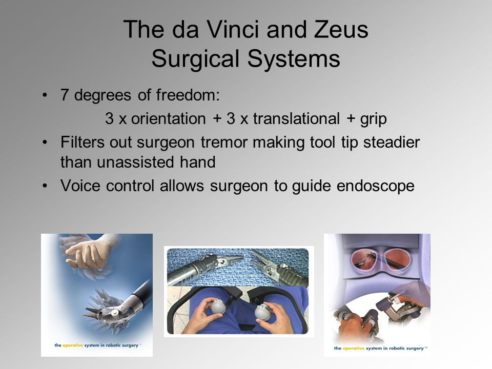 The da Vinci and Zeus Surgical Systems 7 degrees of freedom: 3 x orientation + 3 x translational + grip Filters out surgeon tremor making tool tip steadier than unassisted hand Voice control allows surgeon to guide endoscope