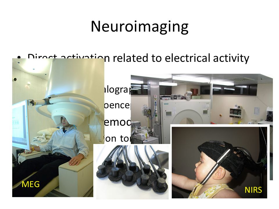 Neuroimaging Direct activation related to electrical activity of the brain – Electroencephalography (EEG) – Magnetoelectroencephalography (MEG) Consequent haemodynamic response – Positron emission tomography (PET) – Functional magnetic resonance imaging (fMRI) – Functional near infrared spectroscopy (fNIRS) MEG PET NIRS