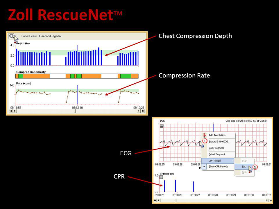 Zoll RescueNet CPR ECG Chest Compression Depth Compression Rate