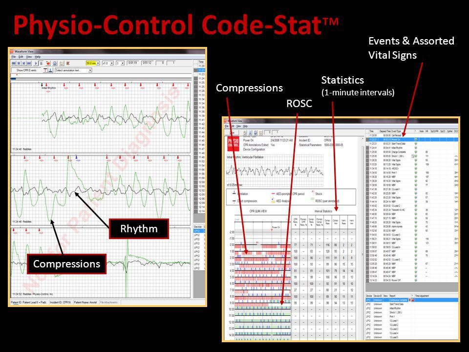 Physio-Control Code-Stat Compressions Rhythm Compressions Events & Assorted Vital Signs ROSC Statistics (1-minute intervals)