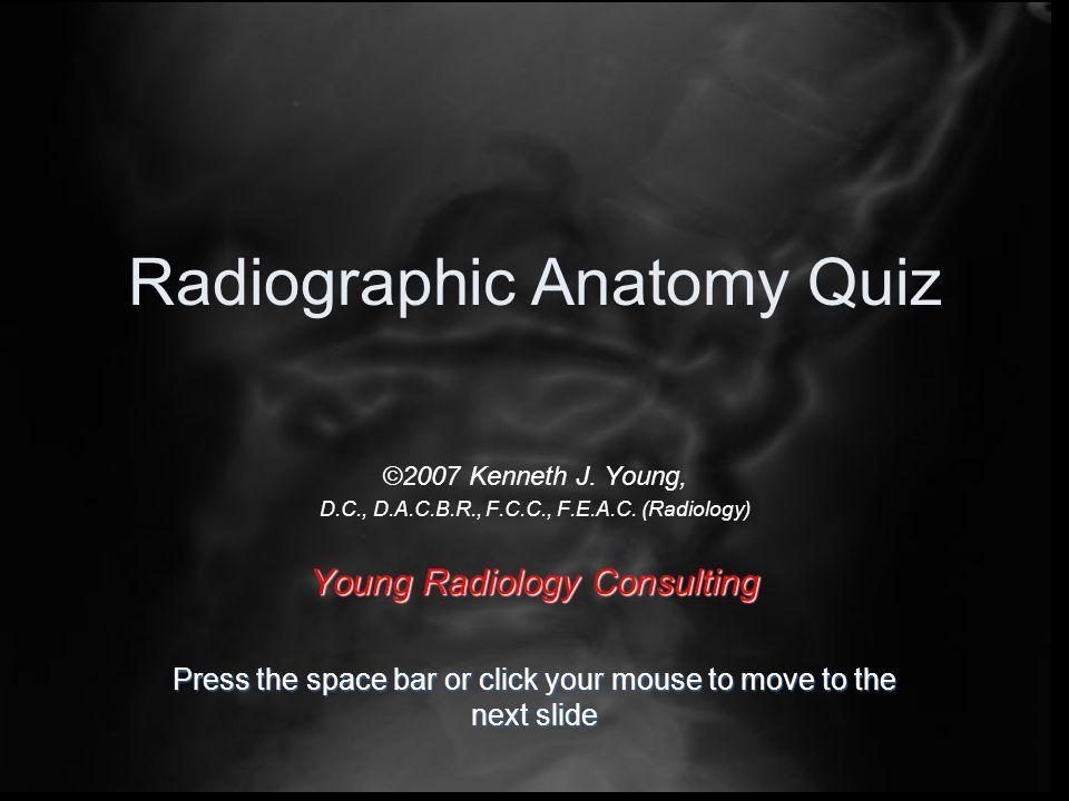 Radiographic Anatomy Quiz ©2007 Kenneth J. Young, D.C., D.A.C.B.R., F.C.C., F.E.A.C.