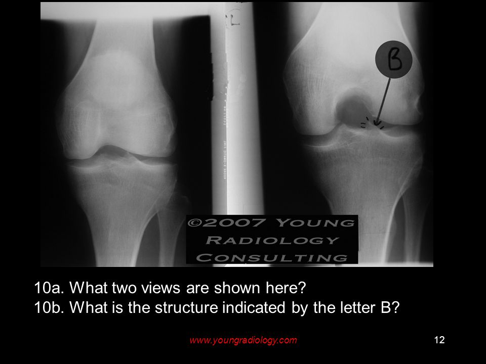 www.youngradiology.com12 10a. What two views are shown here? 10b. What is the structure indicated by the letter B?