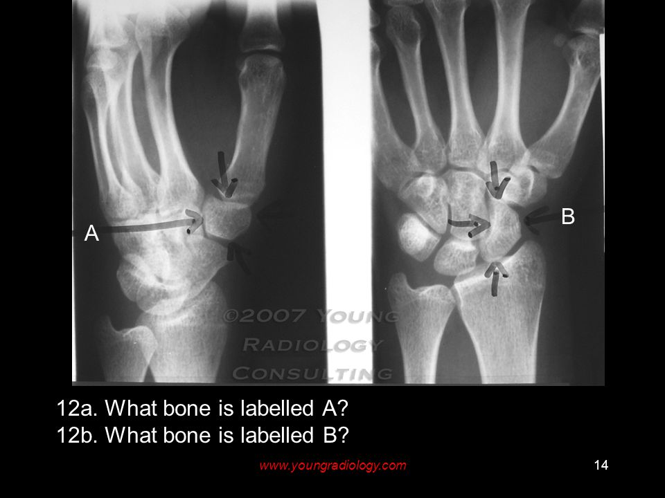 www.youngradiology.com14 A B 12a. What bone is labelled A 12b. What bone is labelled B