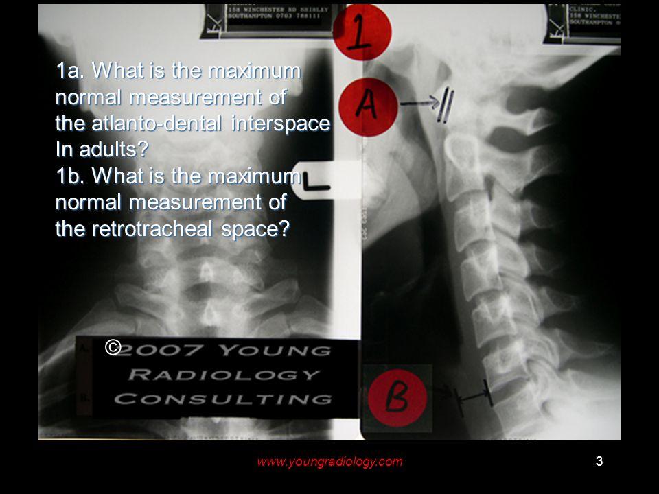 www.youngradiology.com3 © 1a.