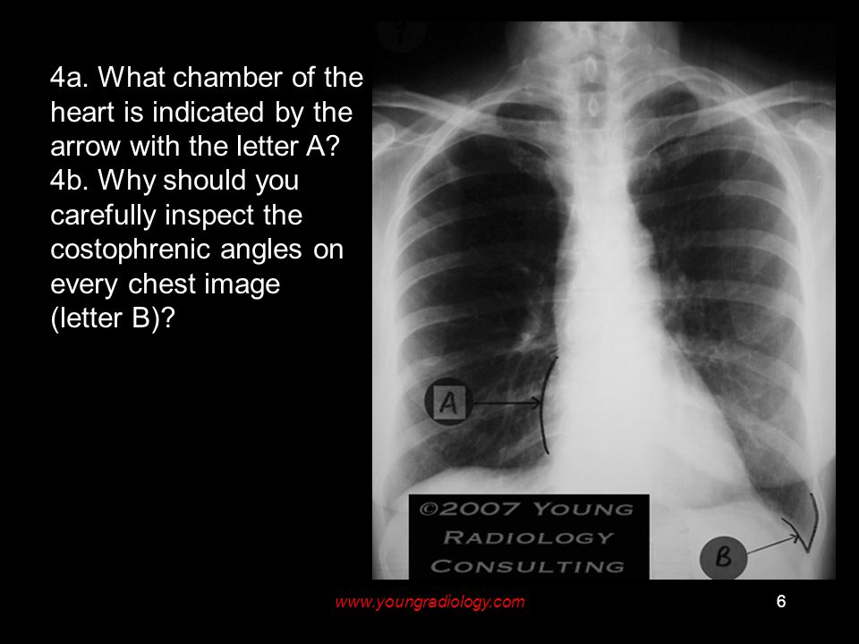 www.youngradiology.com6 4a. What chamber of the heart is indicated by the arrow with the letter A.