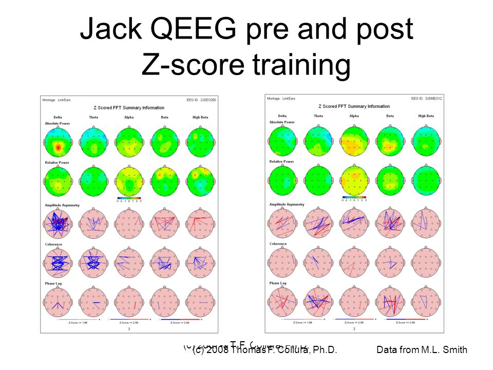 (c) 2007-9 T. F. Collura, Ph.D. Jack QEEG pre and post Z-score training (c) 2008 Thomas F. Collura, Ph.D. Data from M.L. Smith