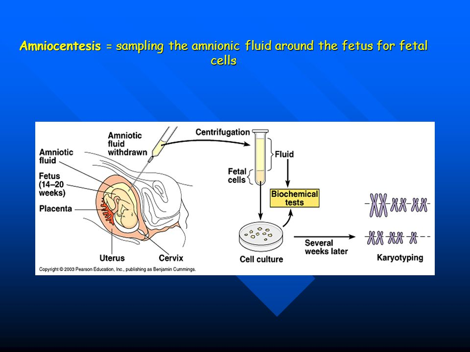 Amniocentesis = sampling the amnionic fluid around the fetus for fetal cells