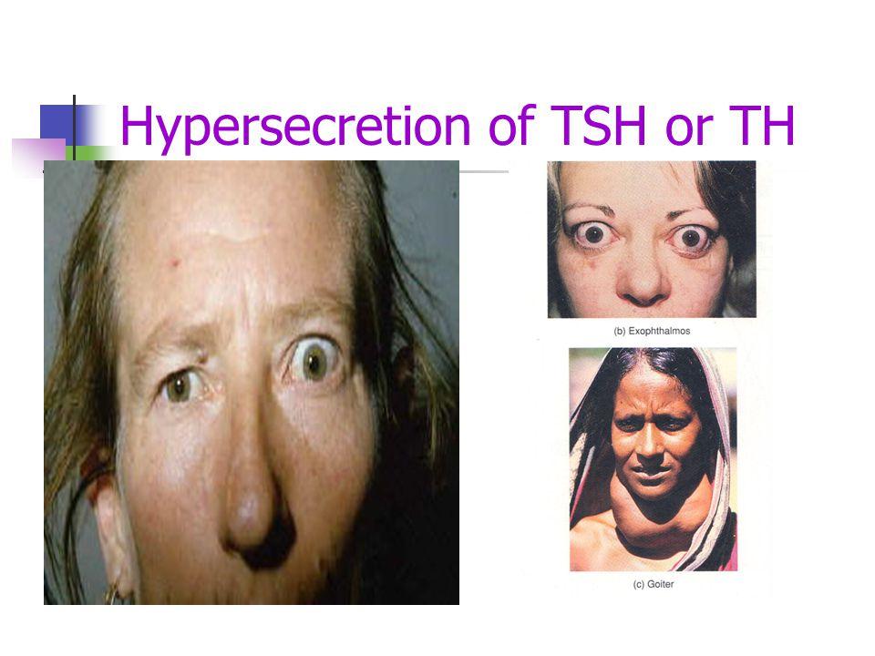 Hypersecretion of TSH or TH