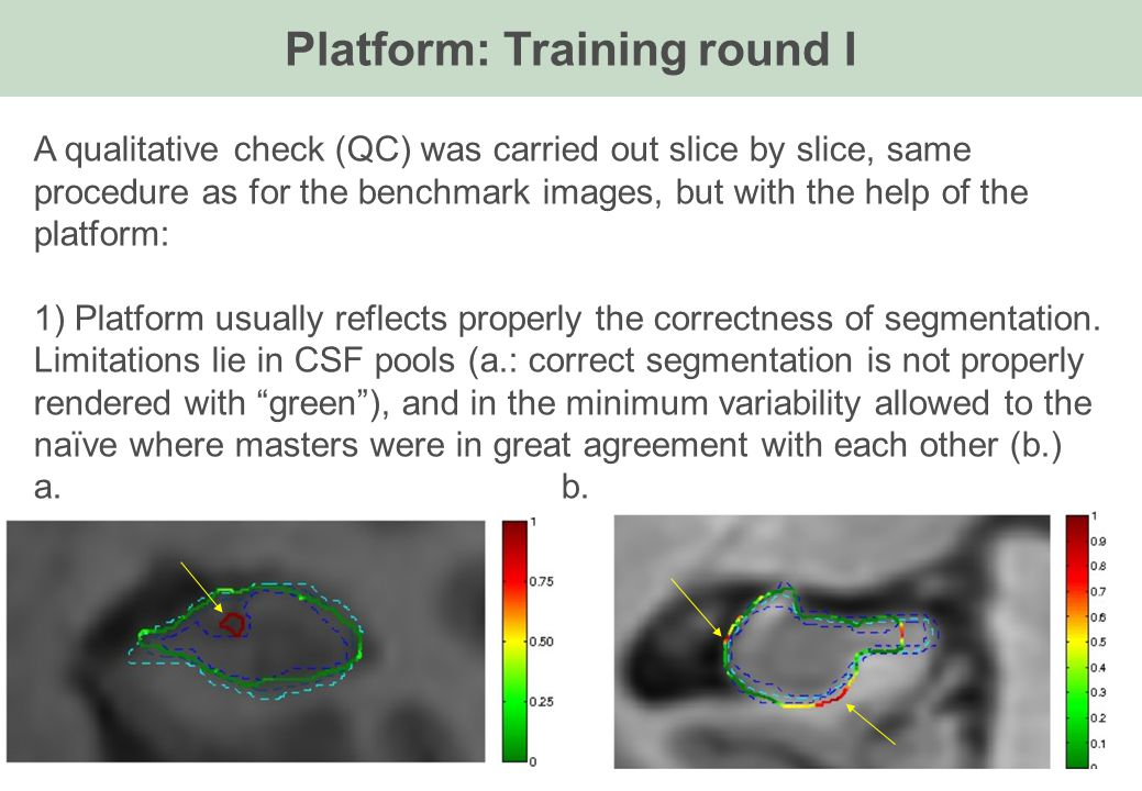 A qualitative check (QC) was carried out slice by slice, same procedure as for the benchmark images, but with the help of the platform: 1) Platform us