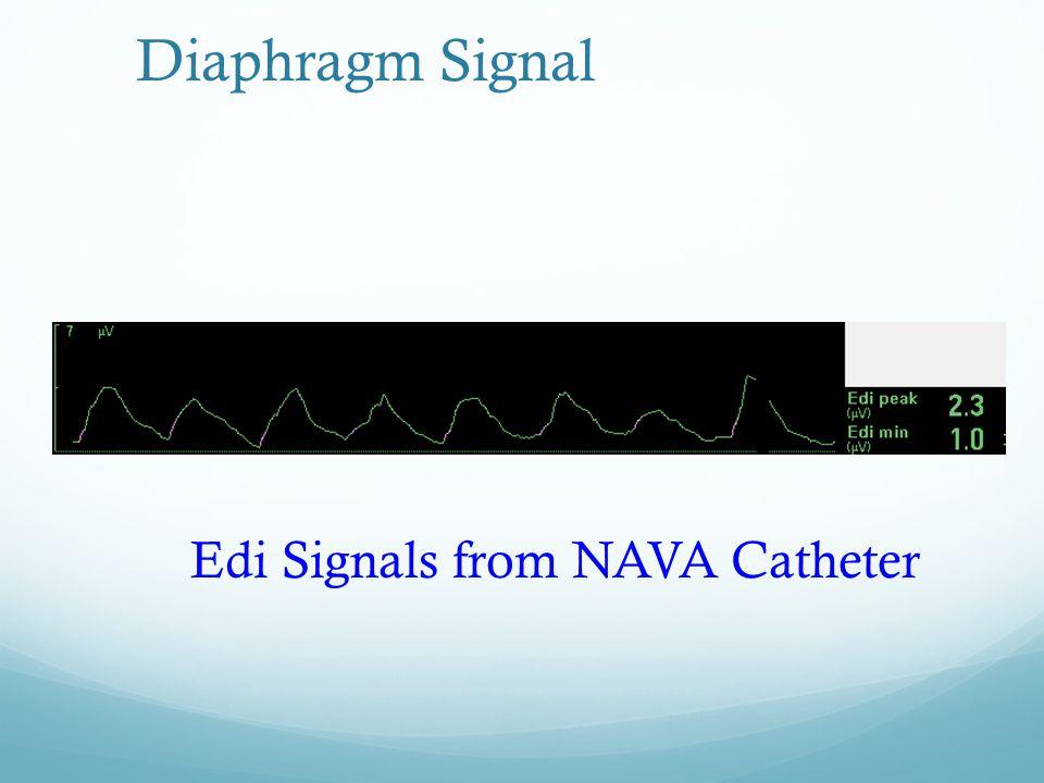 Diaphragm Signal Edi Signals from NAVA Catheter
