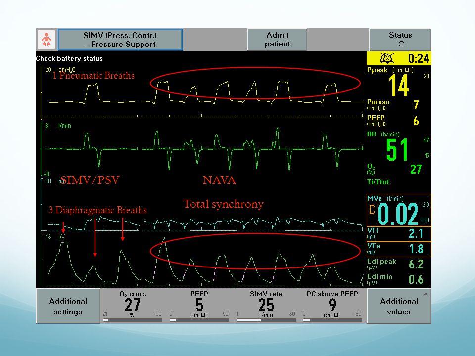 3 Diaphragmatic Breaths 1 Pneumatic Breaths Total synchrony SIMV/PSVNAVA