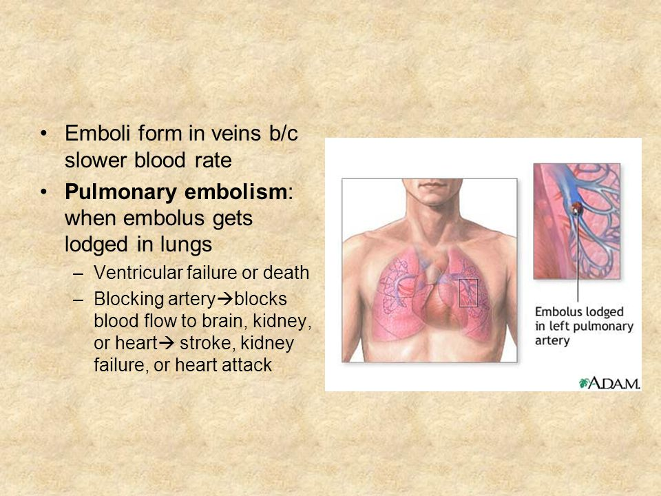 Emboli form in veins b/c slower blood rate Pulmonary embolism: when embolus gets lodged in lungs –Ventricular failure or death –Blocking artery blocks blood flow to brain, kidney, or heart stroke, kidney failure, or heart attack
