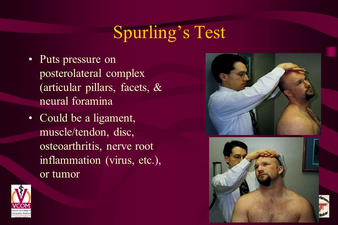 Spurlings Test Puts pressure on posterolateral complex (articular pillars, facets, & neural foramina Could be a ligament, muscle/tendon, disc, osteoar