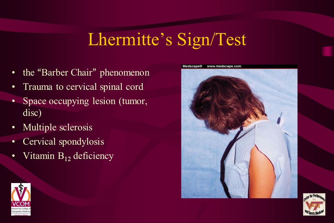 Lhermittes Sign/Test the Barber Chair phenomenon Trauma to cervical spinal cord Space occupying lesion (tumor, disc) Multiple sclerosis Cervical spond