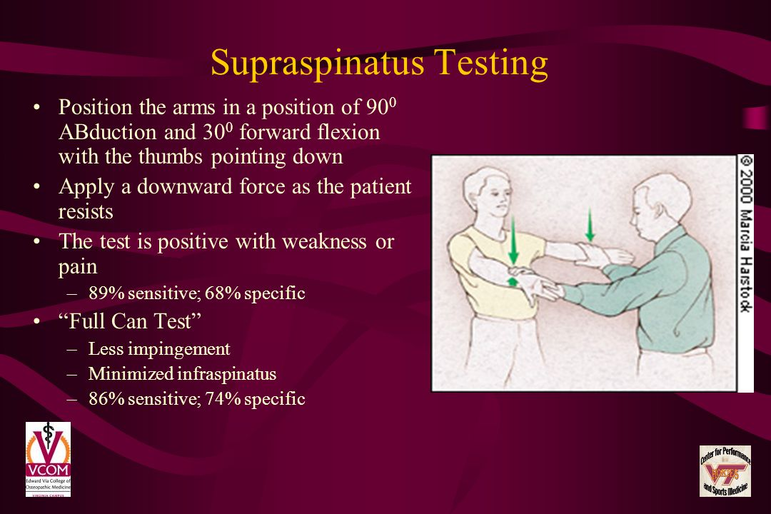 Supraspinatus Testing Position the arms in a position of 90 0 ABduction and 30 0 forward flexion with the thumbs pointing down Apply a downward force