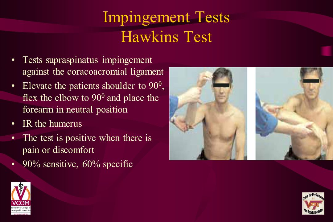 Impingement Tests Hawkins Test Tests supraspinatus impingement against the coracoacromial ligament Elevate the patients shoulder to 90 0, flex the elb