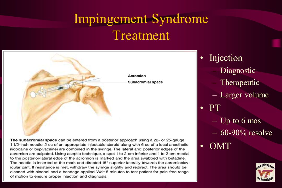 Impingement Syndrome Treatment Injection –Diagnostic –Therapeutic –Larger volume PT –Up to 6 mos –60-90% resolve OMT