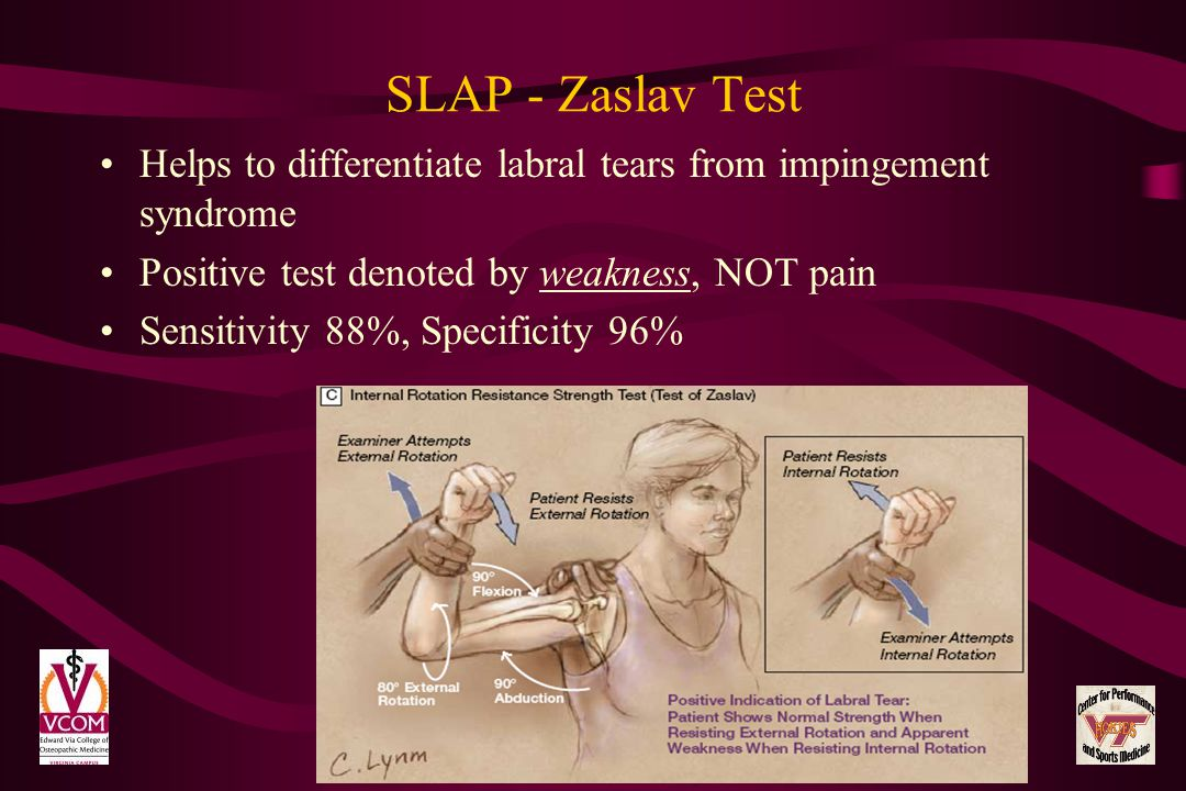 SLAP - Zaslav Test Helps to differentiate labral tears from impingement syndrome Positive test denoted by weakness, NOT pain Sensitivity 88%, Specific