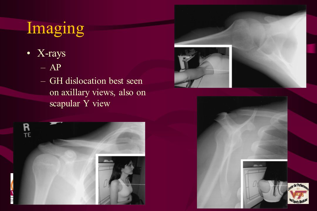 Imaging X-rays –AP –GH dislocation best seen on axillary views, also on scapular Y view