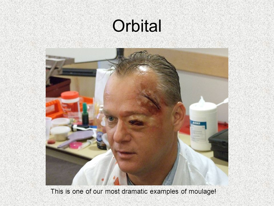 Orbital This is one of our most dramatic examples of moulage!
