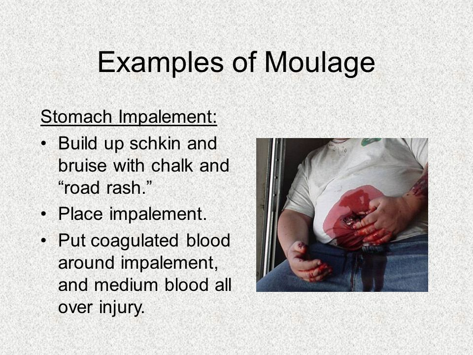 Examples of Moulage Stomach Impalement: Build up schkin and bruise with chalk and road rash. Place impalement. Put coagulated blood around impalement,