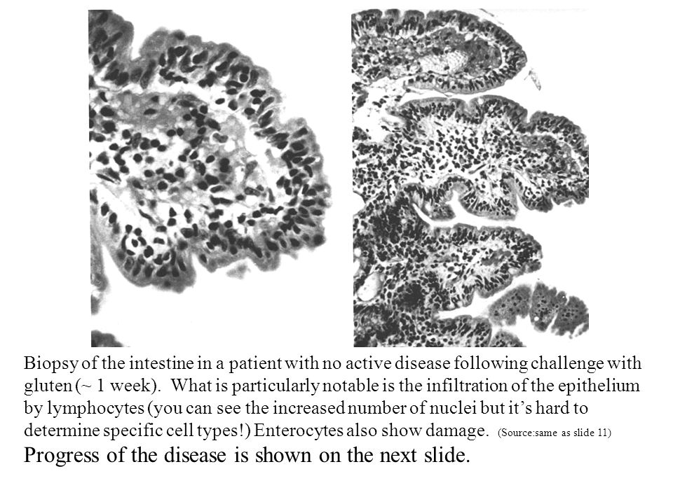 Biopsy of the intestine in a patient with no active disease following challenge with gluten (~ 1 week).
