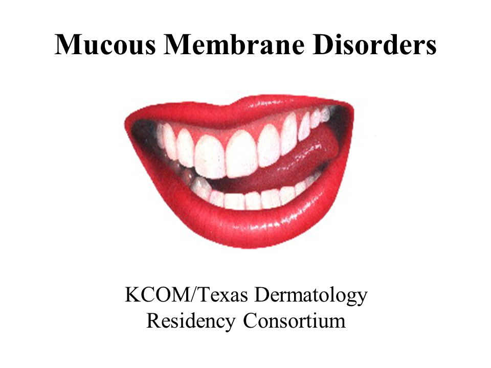 Mucous Membrane Disorders KCOM/Texas Dermatology Residency Consortium