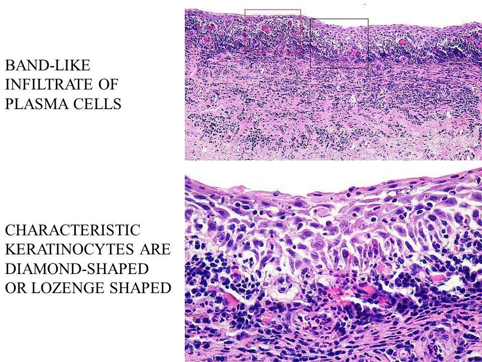 BAND-LIKE INFILTRATE OF PLASMA CELLS CHARACTERISTIC KERATINOCYTES ARE DIAMOND-SHAPED OR LOZENGE SHAPED