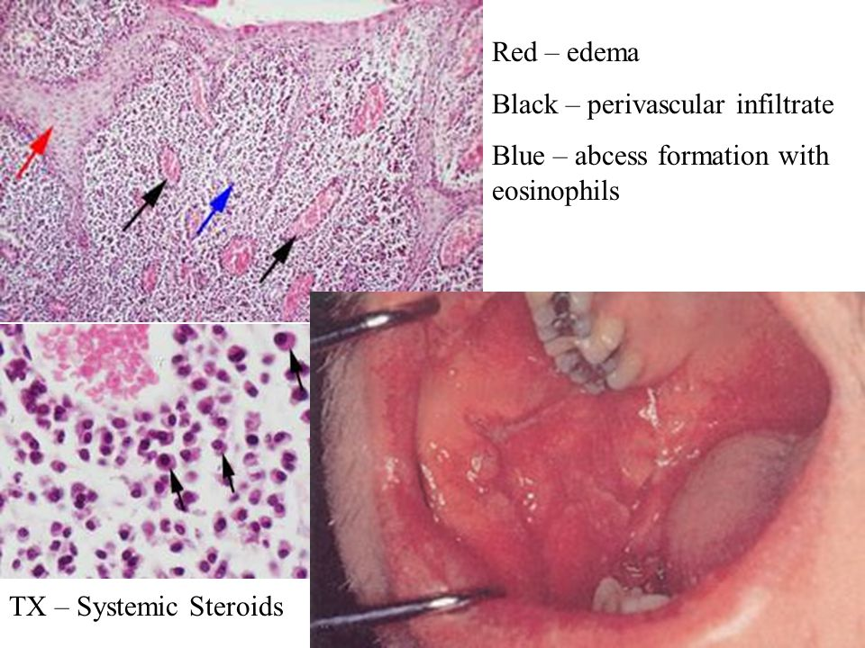 Red – edema Black – perivascular infiltrate Blue – abcess formation with eosinophils TX – Systemic Steroids