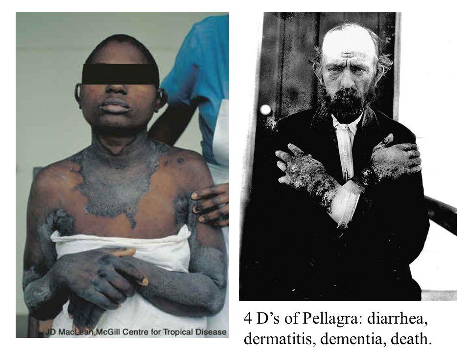 4 Ds of Pellagra: diarrhea, dermatitis, dementia, death.