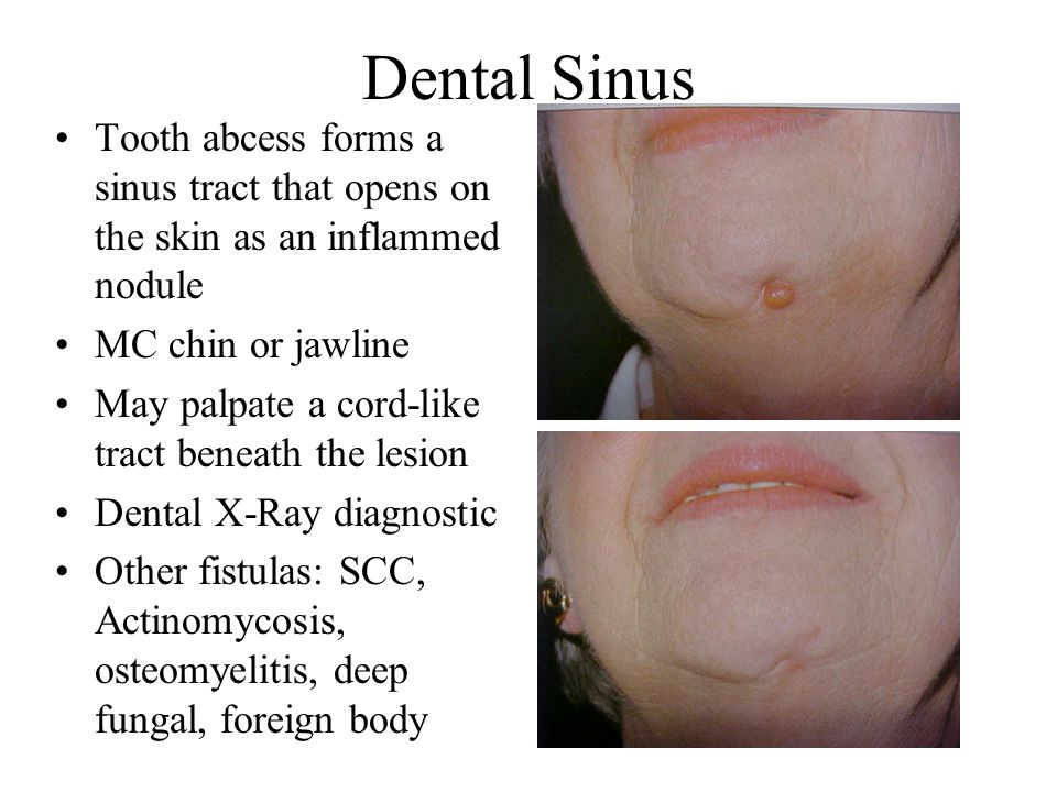 Dental Sinus Tooth abcess forms a sinus tract that opens on the skin as an inflammed nodule MC chin or jawline May palpate a cord-like tract beneath t