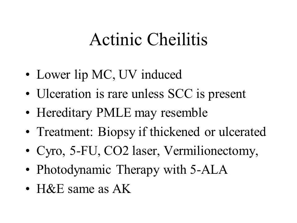 Actinic Cheilitis Lower lip MC, UV induced Ulceration is rare unless SCC is present Hereditary PMLE may resemble Treatment: Biopsy if thickened or ulc