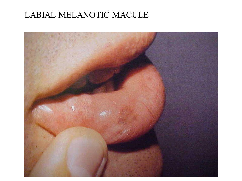 LABIAL MELANOTIC MACULE