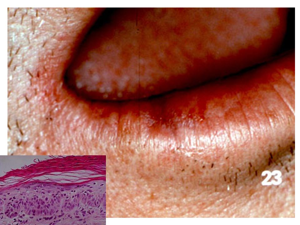Cheilitis Glandularis Swelling and eversion of lower lip with patulous openings of the ducts of the mucous glands - Chronic, inflammatory.