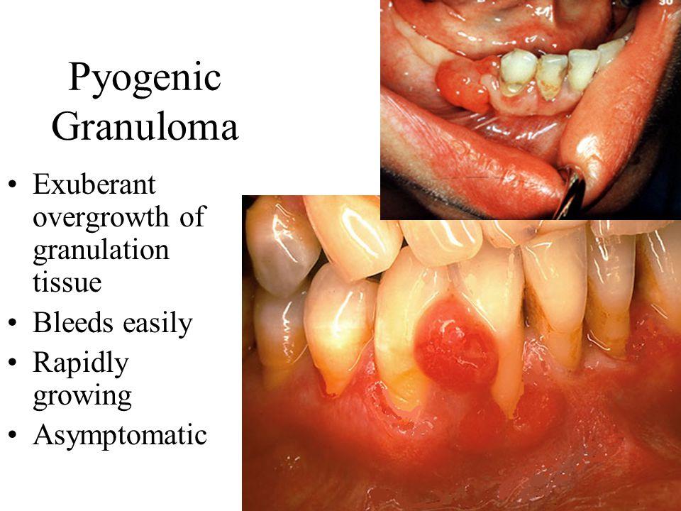 Pyogenic Granuloma Exuberant overgrowth of granulation tissue Bleeds easily Rapidly growing Asymptomatic
