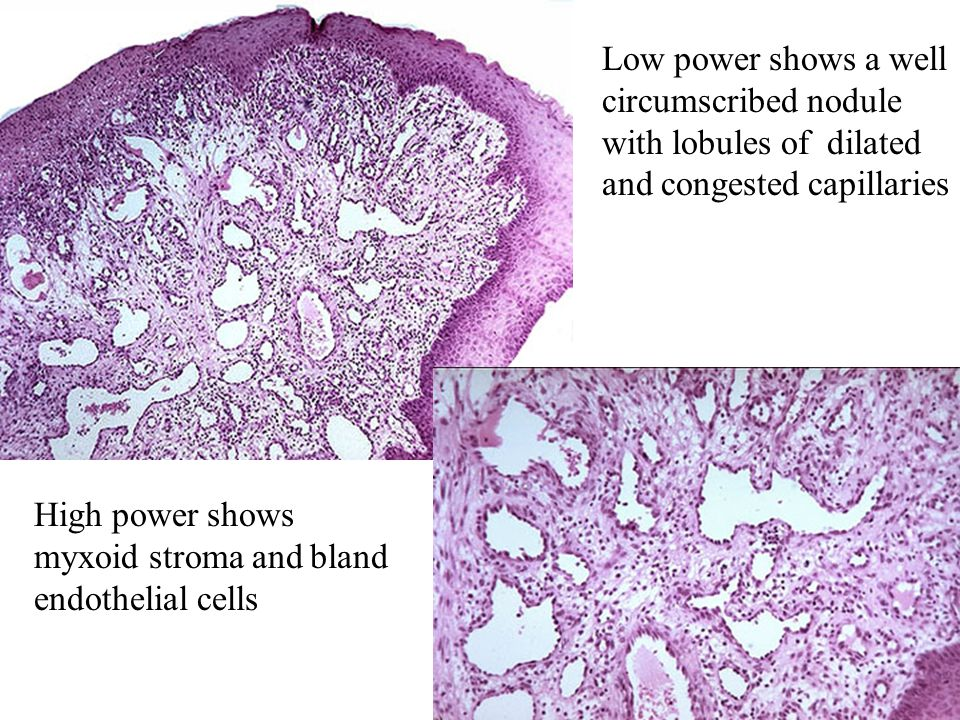 Low power shows a well circumscribed nodule with lobules of dilated and congested capillaries High power shows myxoid stroma and bland endothelial cel