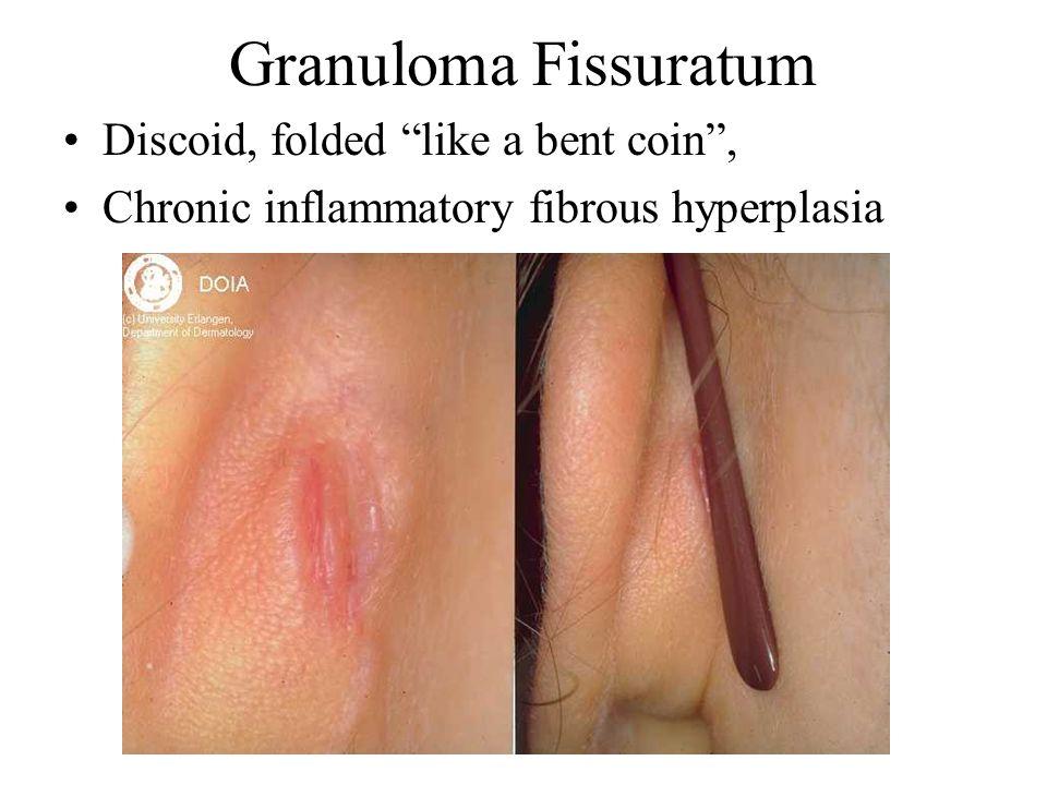 Granuloma Fissuratum Discoid, folded like a bent coin, Chronic inflammatory fibrous hyperplasia