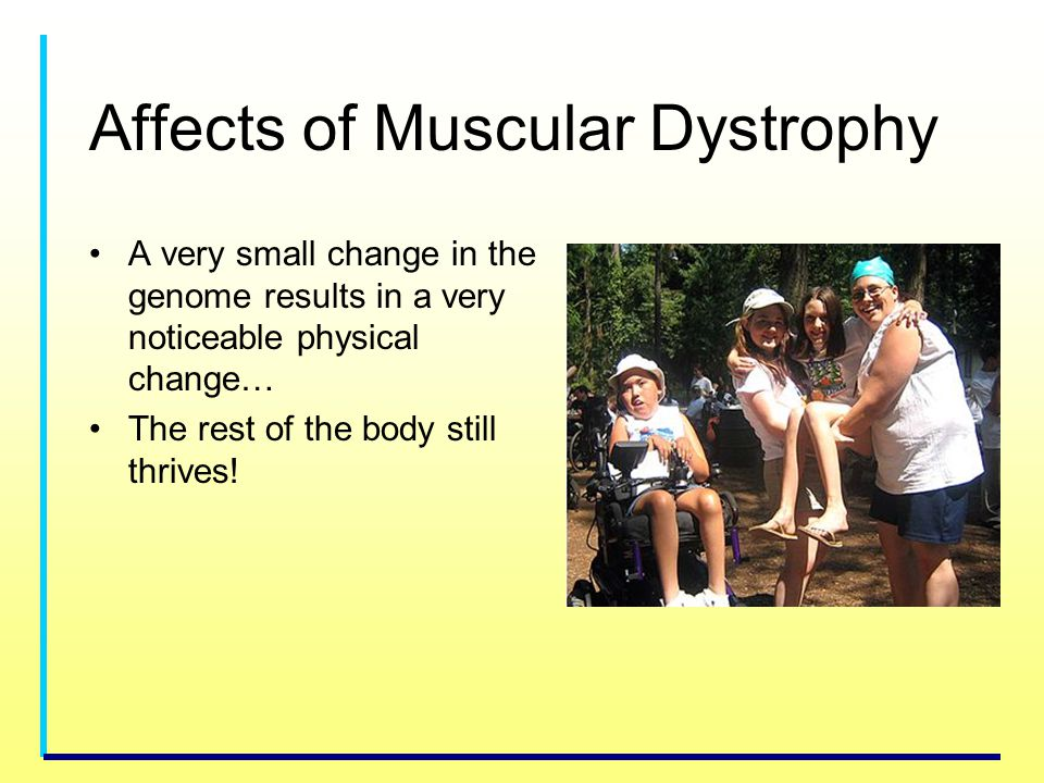 Affects of Muscular Dystrophy A very small change in the genome results in a very noticeable physical change… The rest of the body still thrives!