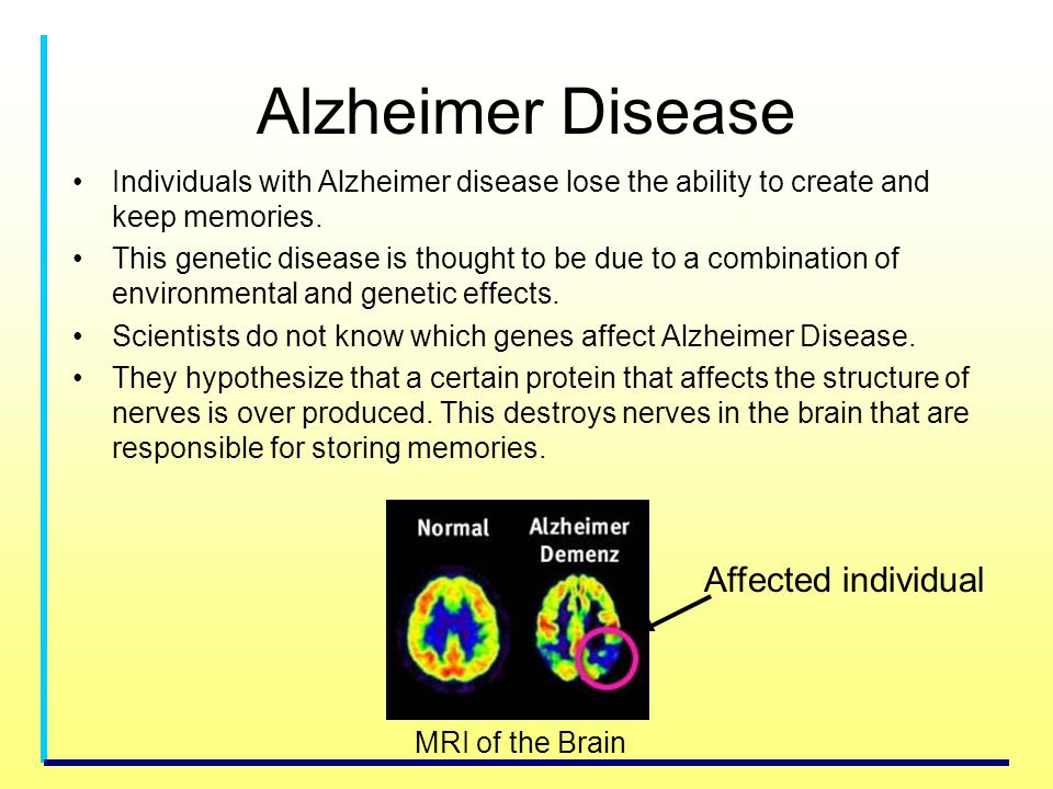 Alzheimer Disease Individuals with Alzheimer disease lose the ability to create and keep memories. This genetic disease is thought to be due to a comb