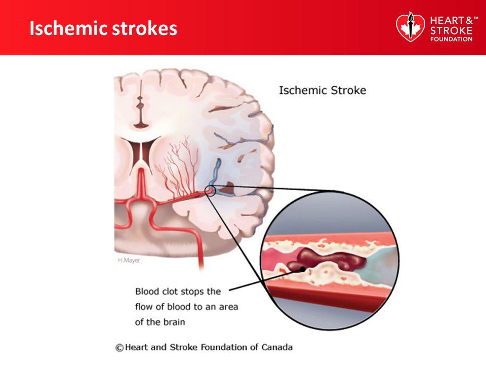 Ischemic strokes