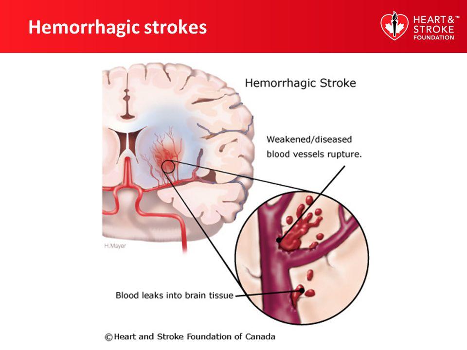 Hemorrhagic strokes