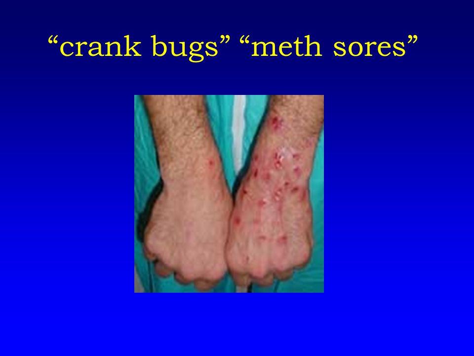 crank bugs meth sores