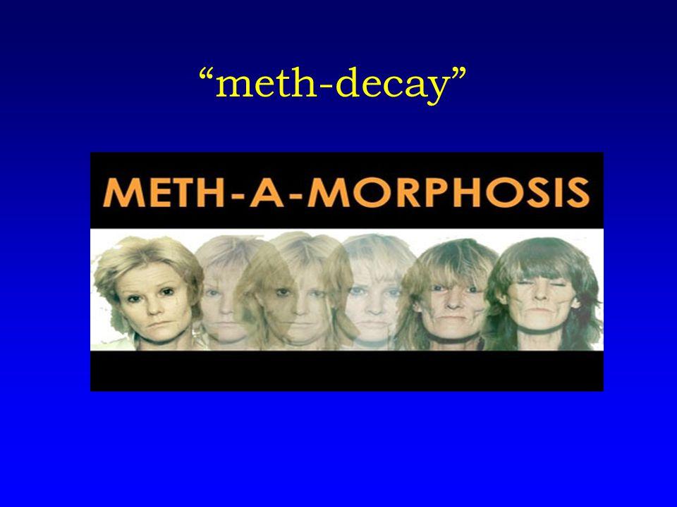 meth-decay