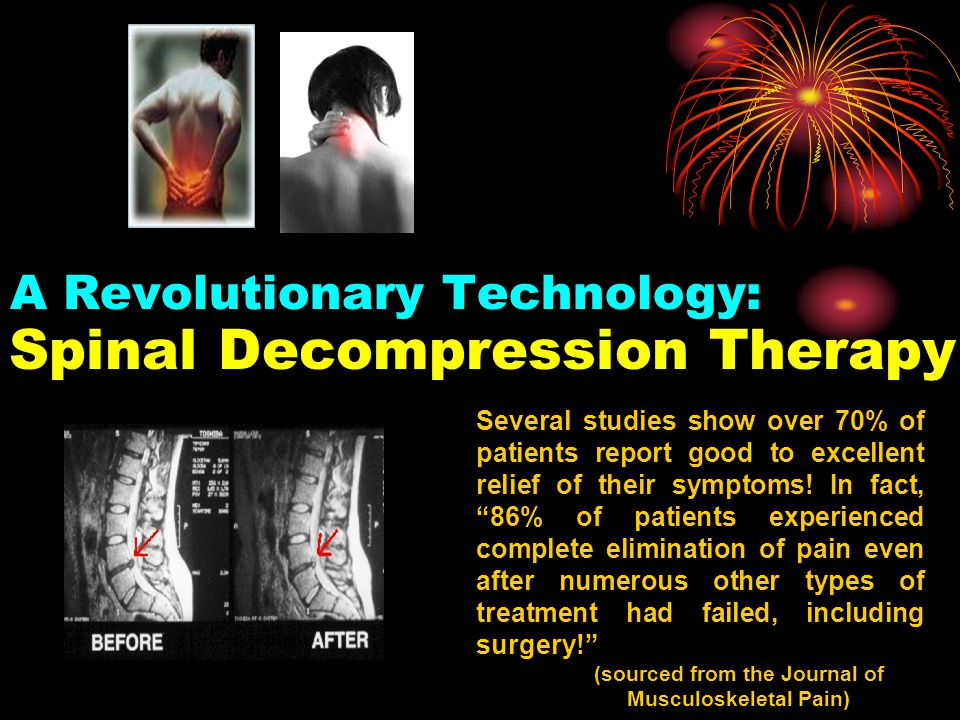 A Revolutionary Technology: Spinal Decompression Therapy Several studies show over 70% of patients report good to excellent relief of their symptoms!