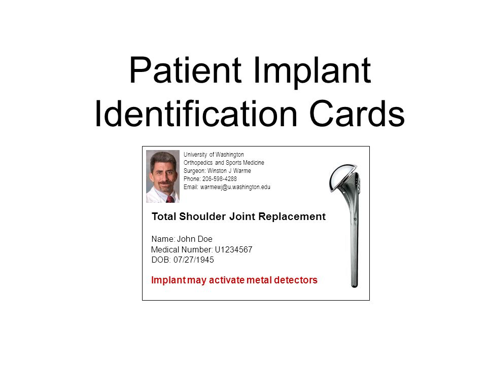 Patient Implant Identification Cards University of Washington Orthopedics and Sports Medicine Surgeon: Winston J Warme Phone: 206-598-4288 Email: warmewj@u.washington.edu Name: John Doe DOB: 07/27/1945 Implant may activate metal detectors Medical Number: U1234567 Total Shoulder Joint Replacement