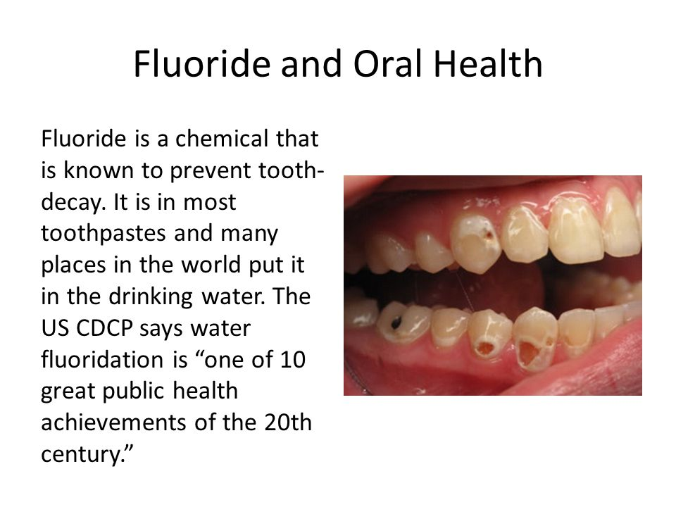 Fluoride and Oral Health Fluoride is a chemical that is known to prevent tooth- decay. It is in most toothpastes and many places in the world put it i