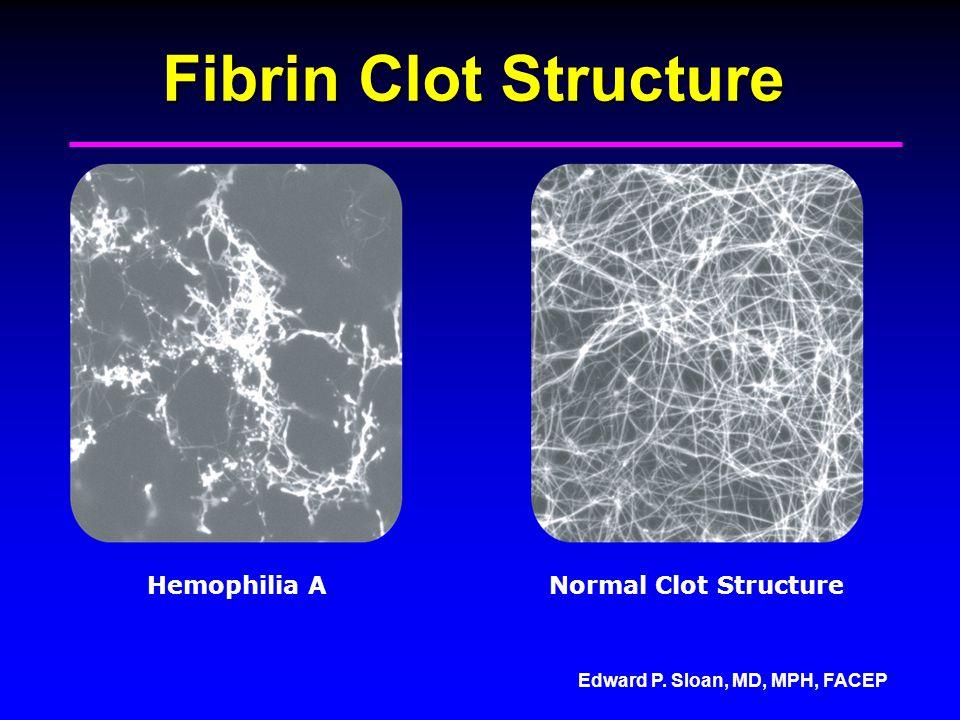 Edward P. Sloan, MD, MPH, FACEP Fibrin Clot Structure Hemophilia ANormal Clot Structure