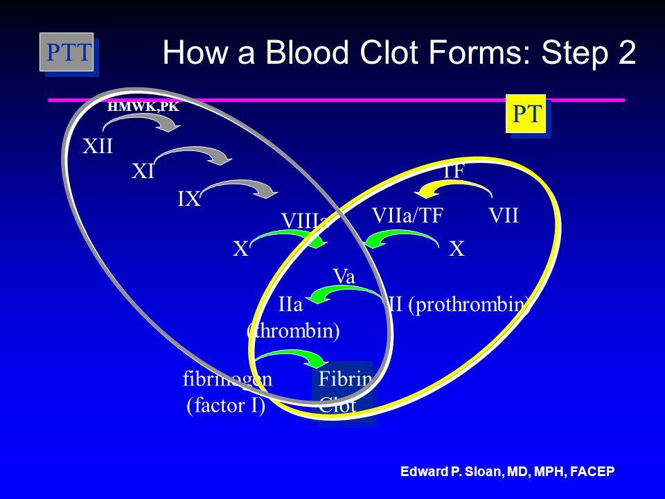Edward P. Sloan, MD, MPH, FACEP XII XI IX VIIIa X Va IIa (thrombin) II (prothrombin) fibrinogen Fibrin Clot Fibrin Clot TF VIIVIIa/TF X HMWK,PK (facto