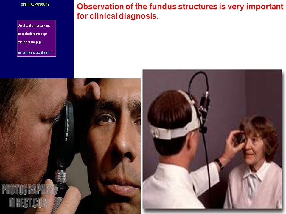Observation of the fundus structures is very important for clinical diagnosis.