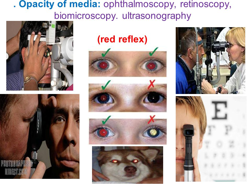 . Opacity of media: ophthalmoscopy, retinoscopy, biomicroscopy. ultrasonography (red reflex)